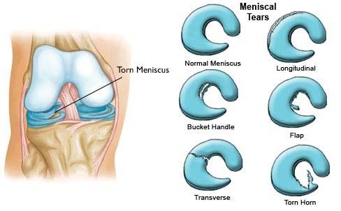 Meniscus
